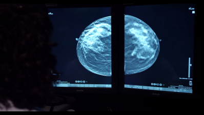 breast-image