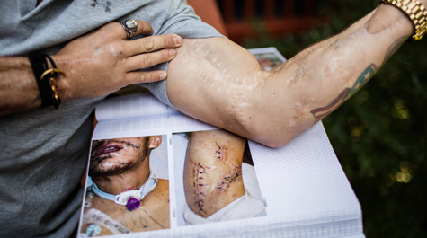 Kyle Carpenter compares his scars today to those captured in photographs shortly after his injuries occurred when he jumped on a grenade to shield a fellow soldier in Afghanistan in 2010. (Eliot Dudik, courtesy of The War Horse/W&M News)